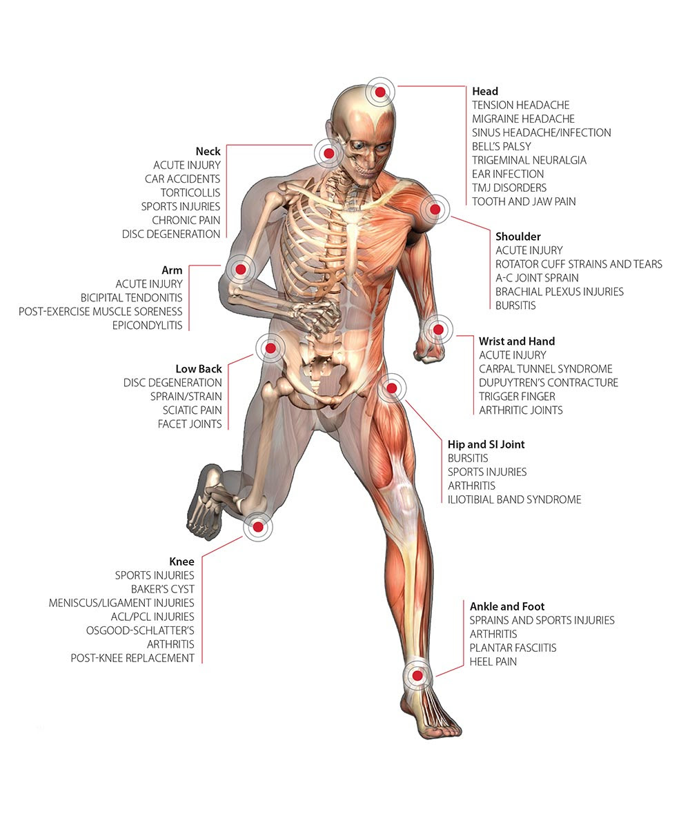 K-Laser Therapy – Downtown Toronto Foot Clinic